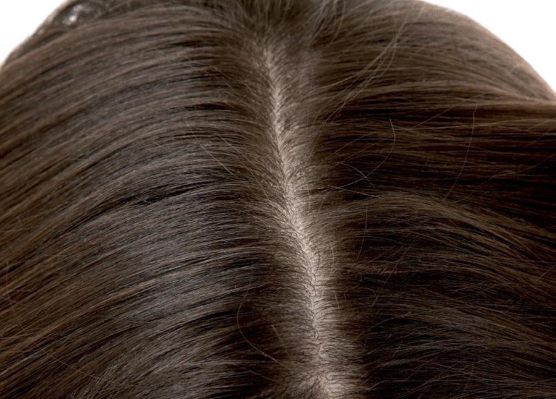 About Hair Scalp Treatment 3